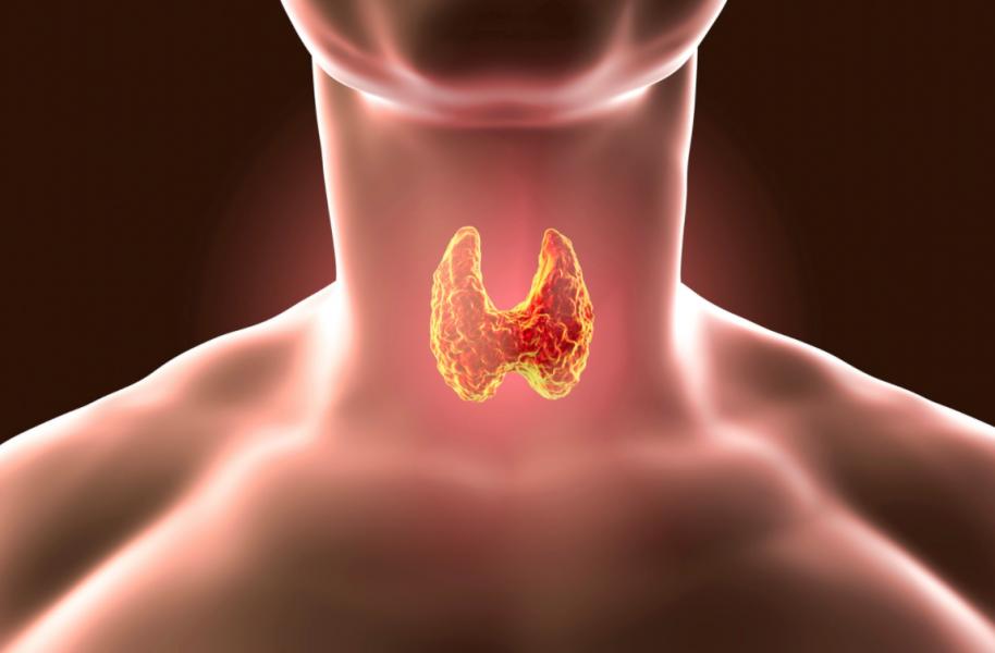 ②甲状腺機能亢進症