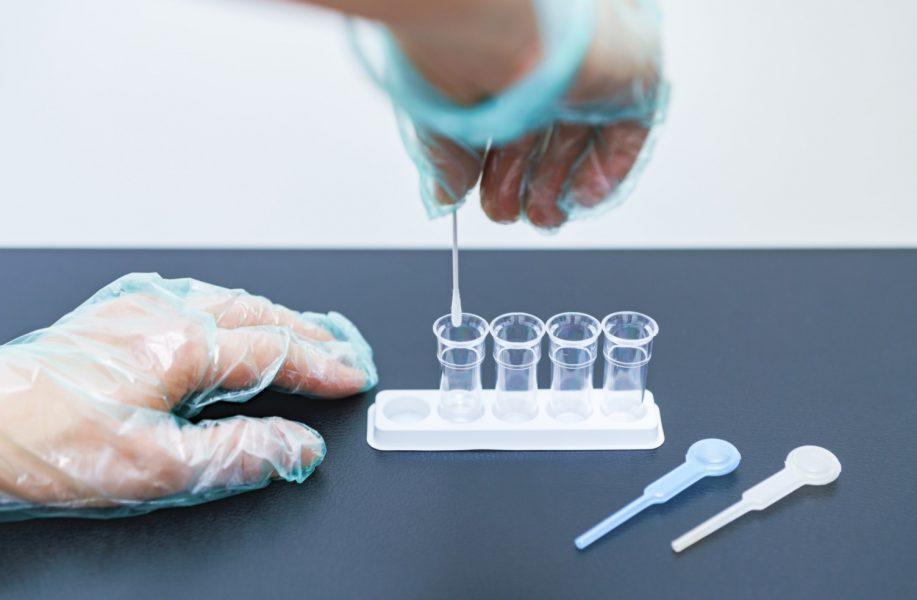 PCR検査 値段は?自分で検査を受けることになったら?【体験談】