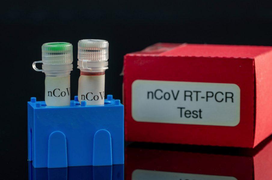 PCR検査方法は?唾液採取法がラク!やってみた注意点は?【体験談】